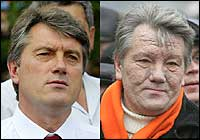 as he appeared in July 2004 (left) and as he appeared in November 2004 (right). His Austrian doctors announced a diagnosis of TCDD dioxin poisoning allegedly caused by an assassination attempt. But later a doctor withdrew his statement saying he had been threatened with death then to announce that Yushchenko was poisoned