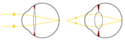 Light from a single point of a distant object and light from a single point of a near object being brought to a focus.
